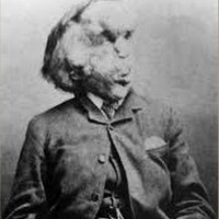 Was The Elephant Man Dr Treves' 'Private' Freak?